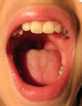 RTEmagicC_mouth_01.jpg