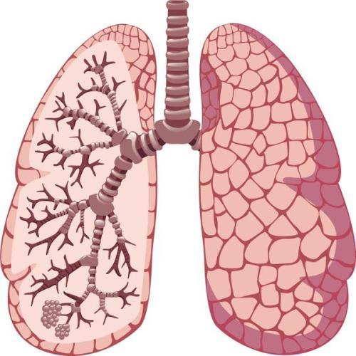 Lung_nodule